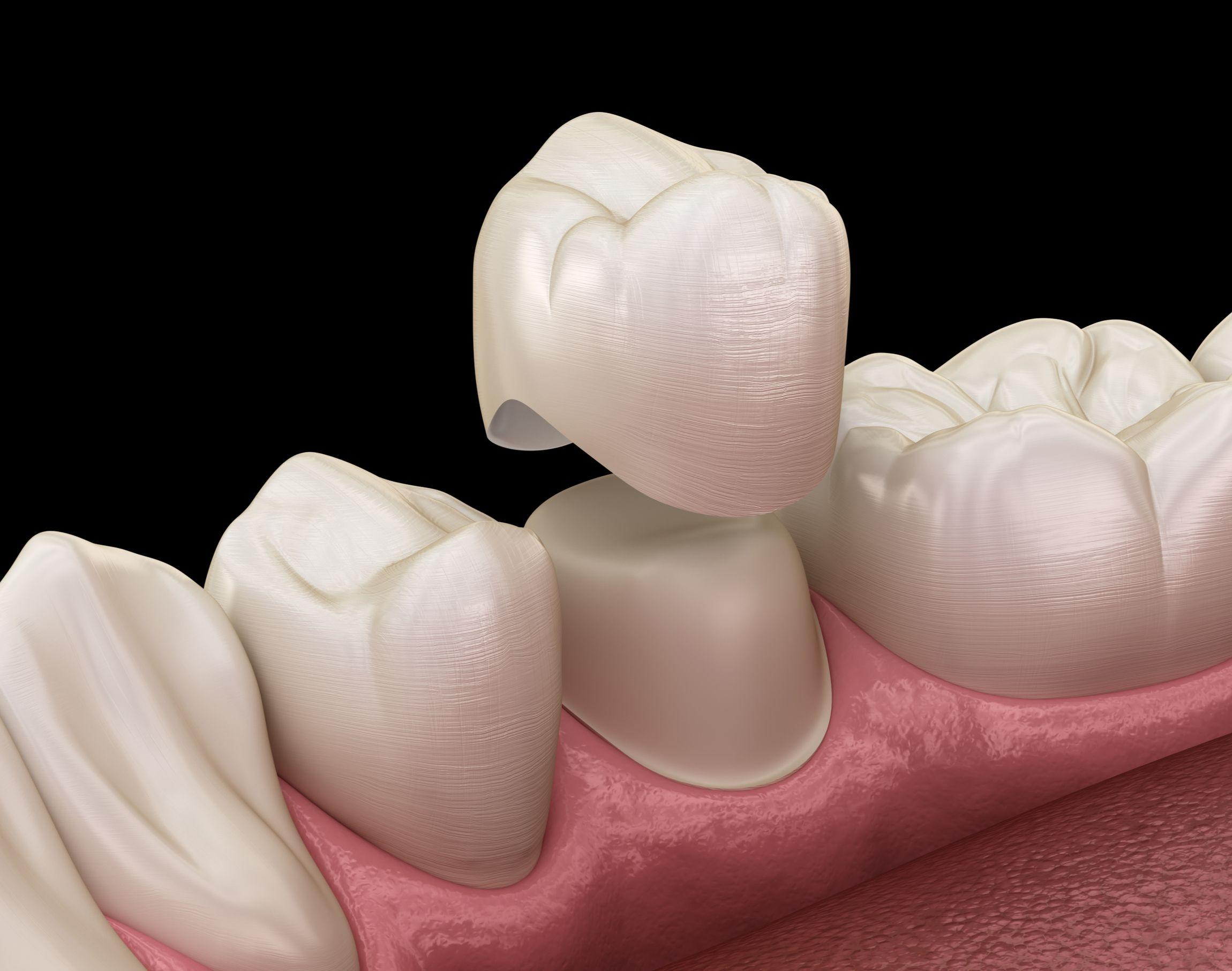 Dental Crown Dentist In Chicopee, MA